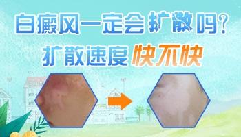 背部晕痣型白斑会发展到脸上吗