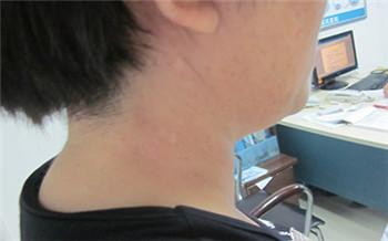 脖子上长了白点是什么