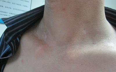 颈部白斑有增多是不是白癜风 白癜风能治好吗