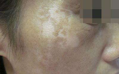 为什么脸上的皮肤会变得特别白