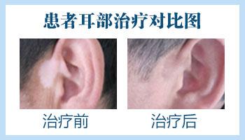 耳朵前边后边都有白癜风怎么办