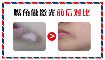 嘴角两侧长黄豆粒大小白斑不疼不痒是白癜风吗