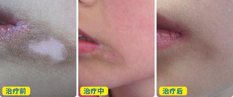 嘴巴周围一圈白的原因是什么