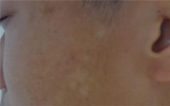 脸上白斑最初期的图片大全