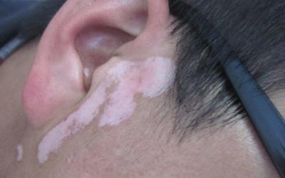 耳后根下小范围皮肤偏白