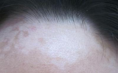 额头有块皮肤发白还很光滑