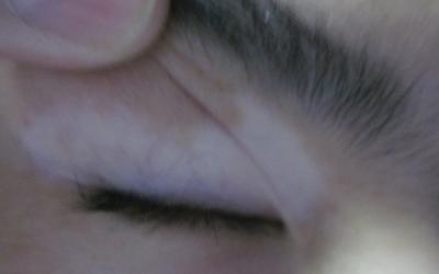 眼睛上边的白斑半年了怎么回事