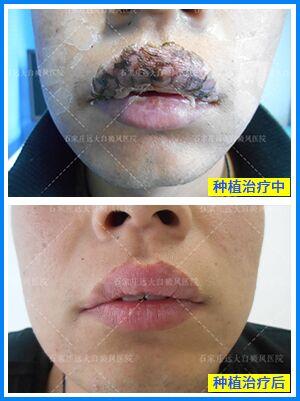 嘴巴上做植皮手术能好吗