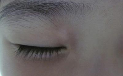 眼皮白斑图片 眼睛周边为什么会发白