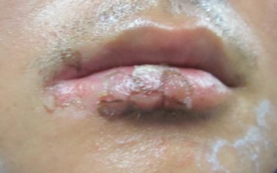 嘴巴周围很白是得了白癜风吗