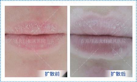 嘴角两边的皮肤颜色非常淡有些白怎么回事