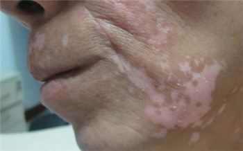 男性脸部白癜风植皮成功后的图片
