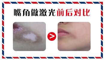 嘴角两侧白斑面积挺大延伸到下巴怎么治