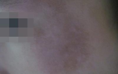 脸上肤色很不均匀有很多白色的斑