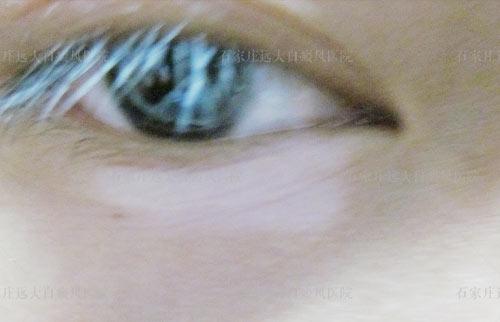 眼睛周围出现白斑 眼睫毛变白是白癜风吗