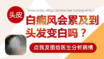 头皮上如果有白癜风头发也会变成白色吗