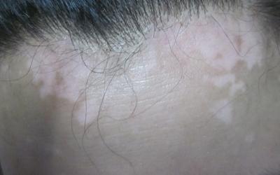 头皮白斑最初期的图片