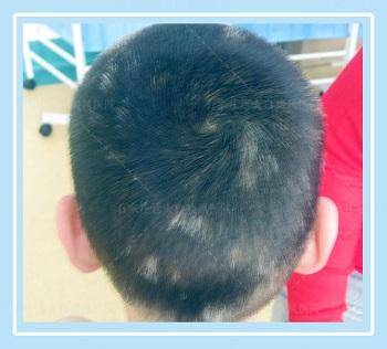 头部白癜风大片白发怎么治疗