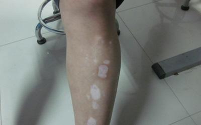 小腿一块皮肤发白是什么原因