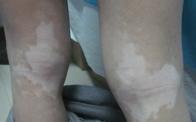 小孩子大腿内侧有块发白