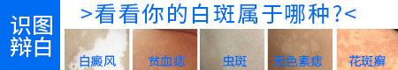 胸口出现白斑图片 胸口小白斑的原因是什么