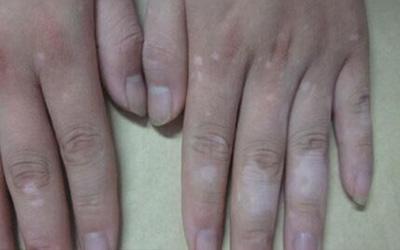 手指中间关节特别白