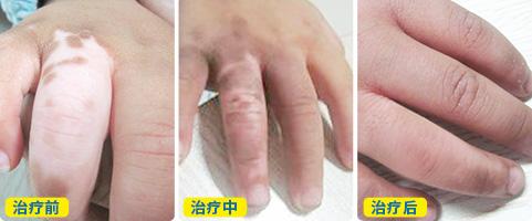 手指白癜风恢复情况照片