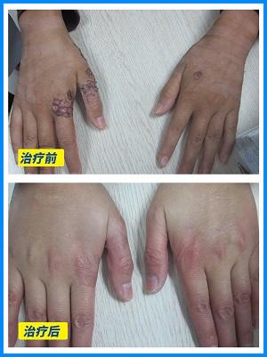 手指白癜风植皮完全恢复图片