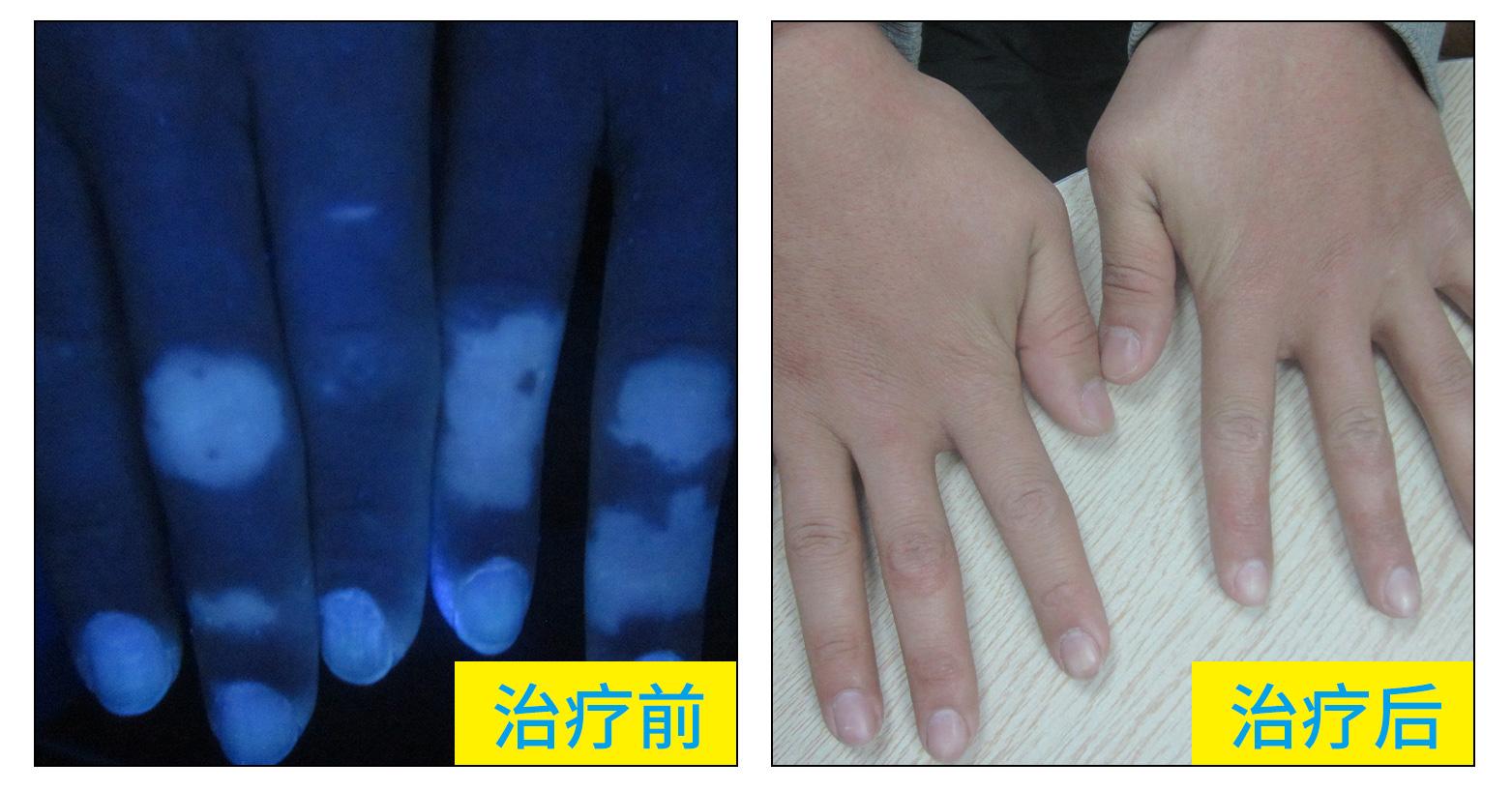 手指皮肤变白是不是白癜风 手指白癜风图片