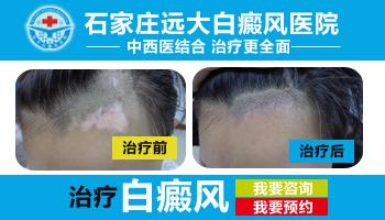 白癜风在手的褶皱部位是怎么治疗