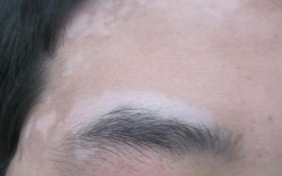 眉毛边上的皮肤为什么变白了