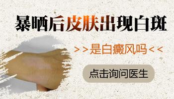 手背关节皮肤变白什么原因