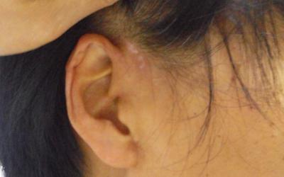 耳朵前面有个小白点是什么原因