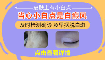 眼皮发白什么原因 皮肤突然变白色是什么病