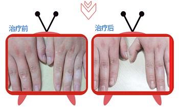 手指上有白色的小点点