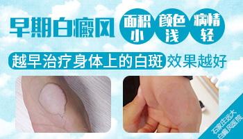 皮肤上有白斑是什么 白斑怎么治疗
