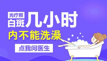 uvb光疗仪治疗白癜风后能洗澡吗