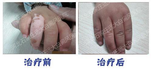 为什么白癜风好发生在手指关节部位
