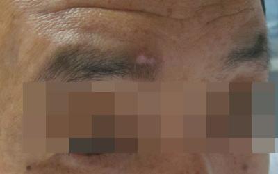照了光后皮肤不白了有几根眉毛还是白的怎么回事