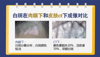 白癜风治疗过程中还需要做皮肤ct吗