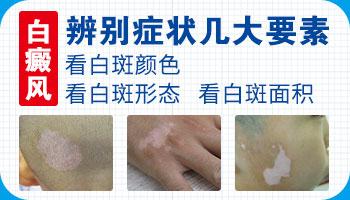 手指关节处有白斑是什么病