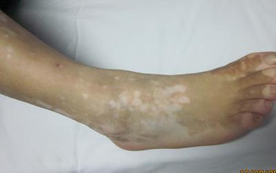 肢端型白癜风常见图片案例