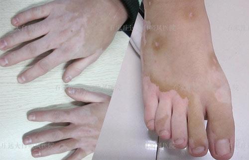 手脚上的白癜风慢慢变大了