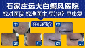 儿童手肘关节皮肤抓破皮了变成了白斑