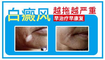 新生儿屁股有一块皮肤发白和别的皮肤不一样