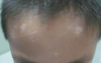 十岁男童额头长了两块白斑怎么办