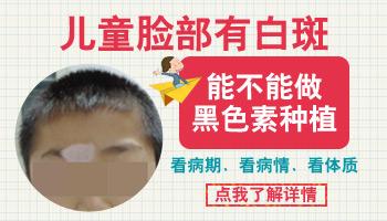 儿童适合黑色素细胞移植手术吗