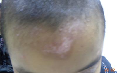 三岁小孩额头皮肤有白块是怎么了