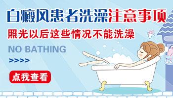 儿童白癜风照完308多久可以洗澡