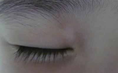 宝宝眼睑下面有块白色
